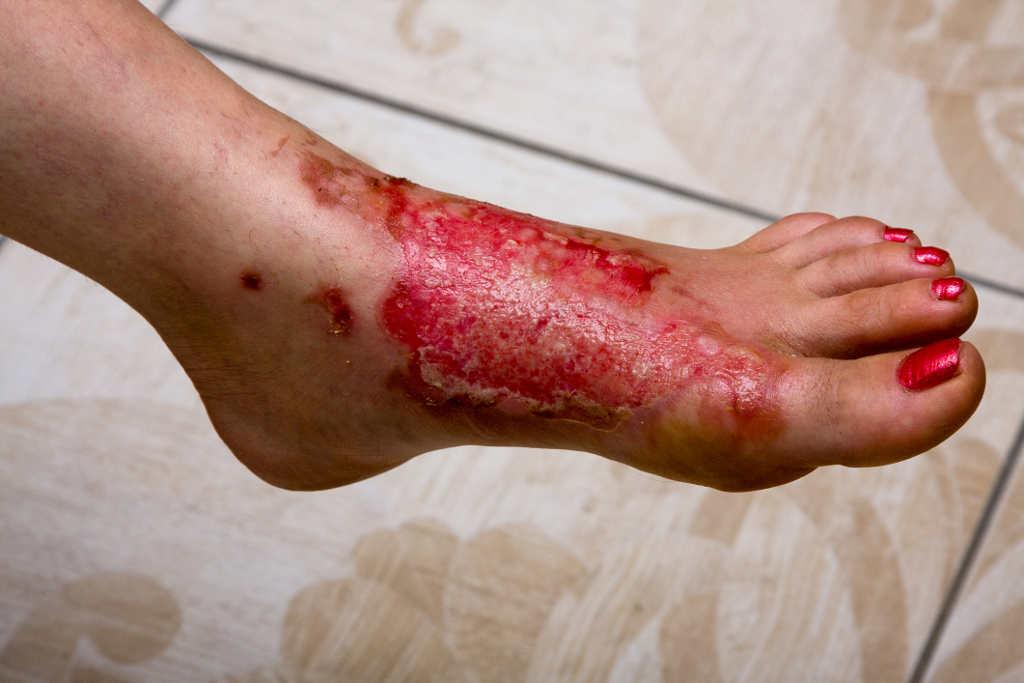 Epidermolisis-bullosa-enfermedad-de-la-piel-de-cristal juntural