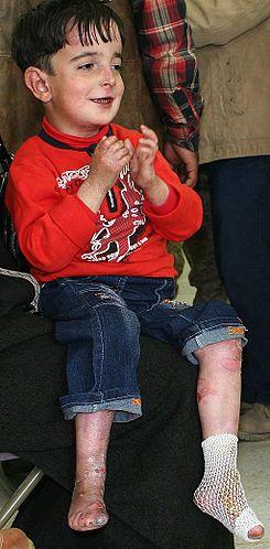 Iraqi-boy-epidermolysis_bullosa-090216-M-8096M-001