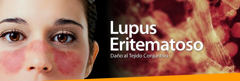 lupus-slide